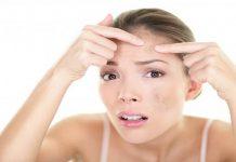3 cách trị mụn ẩn tại nhà